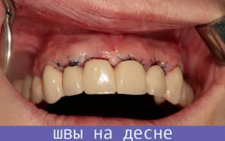 Ушивание лунки после удаления зуба