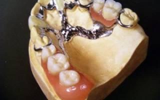 Протезирование верхней челюсти