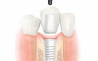 Этапы протезирования на имплантатах