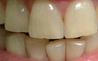 Почему трескается эмаль на зубах