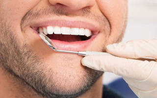 Протезирование зубов при частичном отсутствии зубов