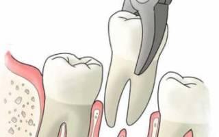 Сколько дней болит зуб