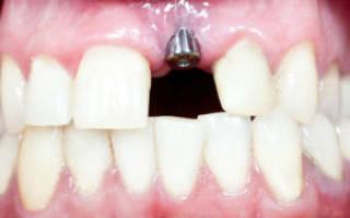 Сколько приживается имплант на нижней челюсти
