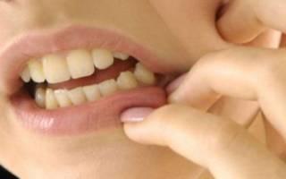 Чешется десна между зубами