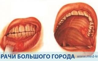 Рак слизистой оболочки полости рта симптомы