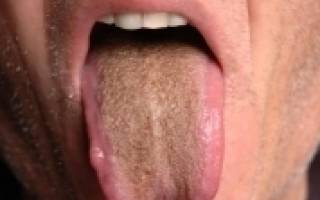 Светло коричневый налет на языке