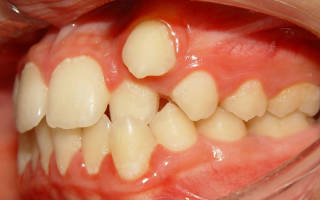 Удаление ретинированного дистопированного зуба что это