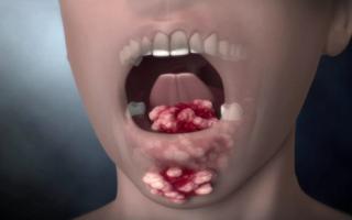 Симптомы рака ротовой полости