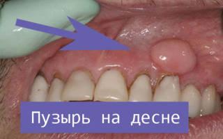 Пузырек на десне около зуба