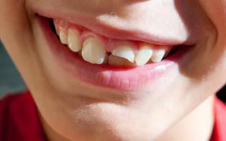 Сломала зуб