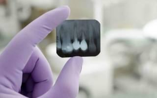 Что показывает рентген зуба