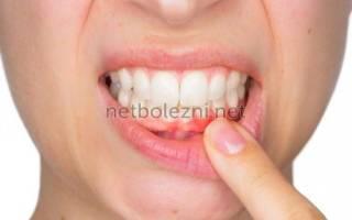 Противовоспалительное средство для полости рта