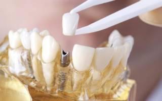 Сколько по времени ставят коронку на зуб