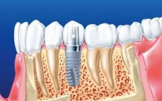 Технология имплантации зуба