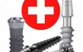 Швейцарские имплантанты зубов