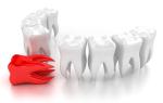 Удаляют ли зуб при флюсе