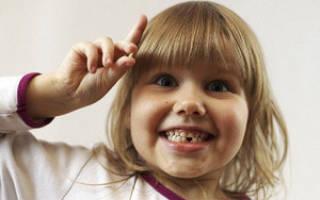 Смена молочных зубов у детей сроки