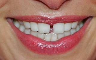 Щербинка в зубах