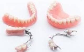 Что лучше имплант или съемный протез