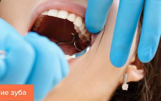 Противопоказания после удаления зуба