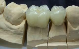 Фарфоровые зубы