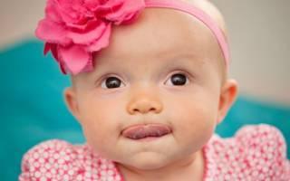 Уздечка на языке у ребенка