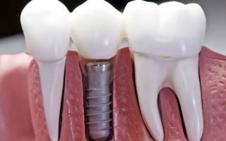 Сколько по времени ставят имплант зуба