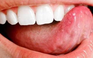 Пузырьки под языком