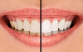 Способы отбеливания зубов в стоматологии