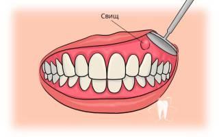Что такое свищ в зубе