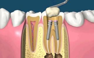 Что такое штифт в стоматологии