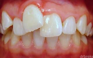 Что делать если один зуб кривой