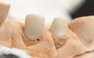Что такое вкладки в протезируемые зубы