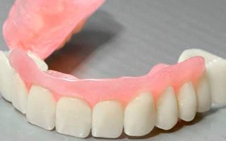 Съемный зубной протез сэндвич