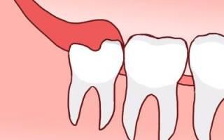 Режется зуб мудрости болит десна чем обезболить