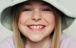 Сроки выпадения молочных зубов у детей