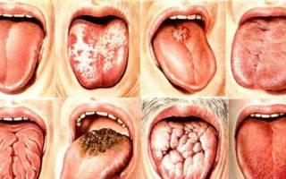 Чем лечить белый налет на языке