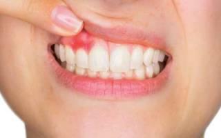 Что такое зубной свищ