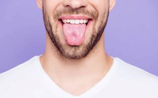 Почему язык белеет