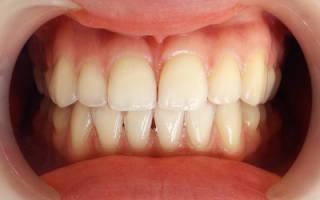 Препараты для отбеливания зубов