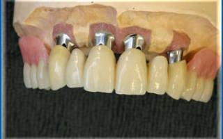 Телескопическое протезирование зубов