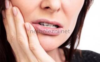 Противовоспалительное при зубной боли