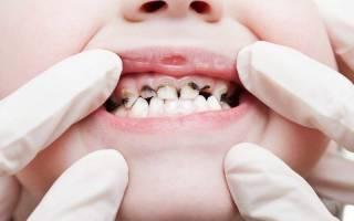 У годовалого ребенка черный налет на зубах