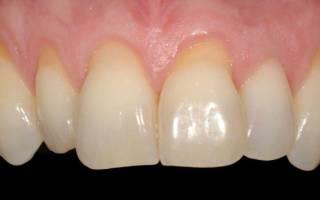 Почему оголяются зубы возле десен
